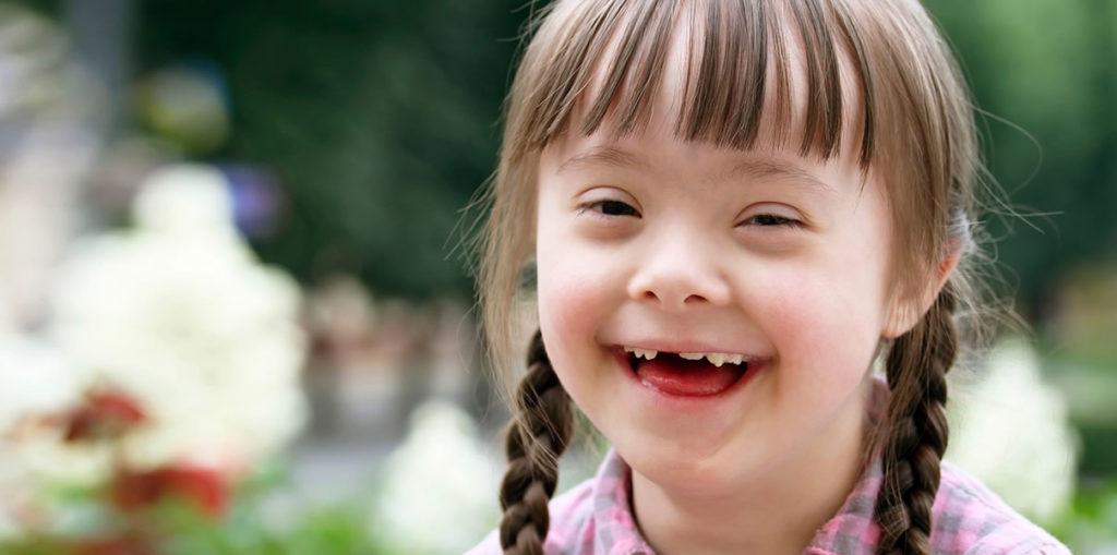 aprendizaje en niños con sindrome de down